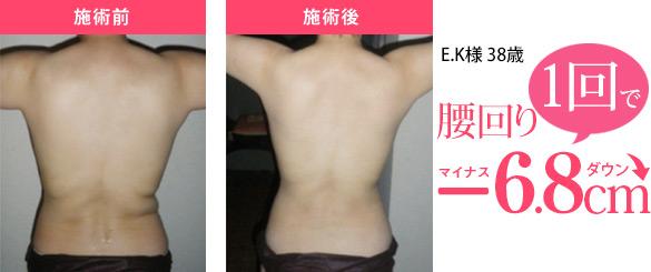 マローナデトックスラップ 施術前→施術後  1回で腰回りマイナス6.8cmダウン